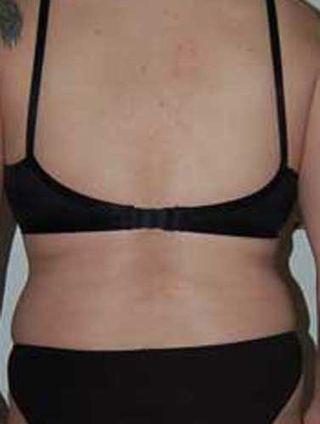 Fat waist